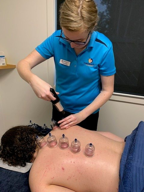 cupping-4